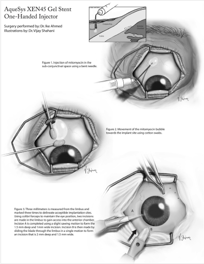 Sample 1: Surgical Illustration