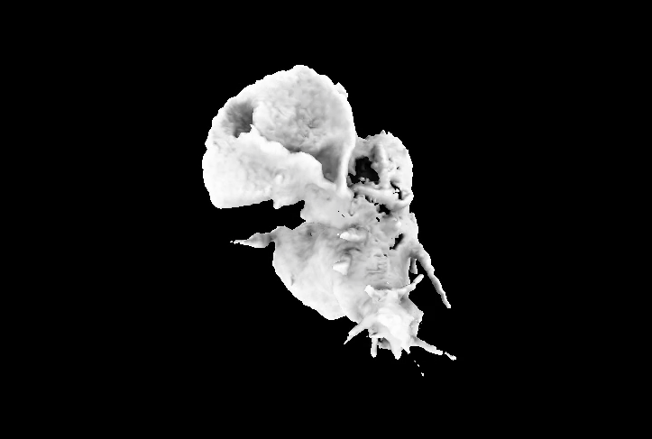 Sample 2: Still from video of HL60 cell crawling